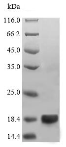 SDS-PAGE - Recombinant Legumin protein (His tag) (ab240848)