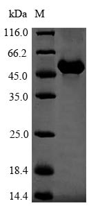 SDS-PAGE - Recombinant Mouse Vitamin D Binding protein (His tag) (ab240859)