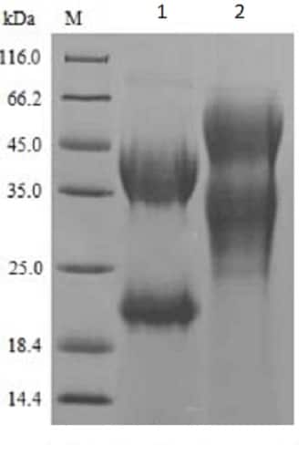 SDS-PAGE - Recombinant Pig P cadherin protein (His tag) (ab240870)