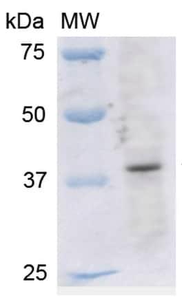 Western blot - Anti-Kir4.1/KCNJ10 antibody (ab240876)