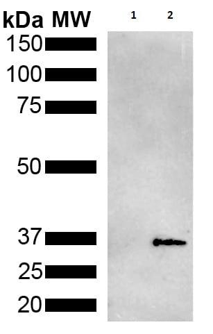 Western blot - Anti-Metallothionein antibody [2B5] (ab240878)