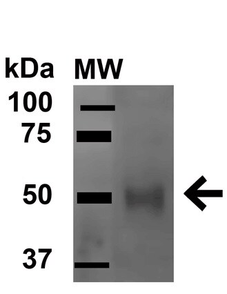 Western blot - Anti-ULK3 antibody (ab240904)