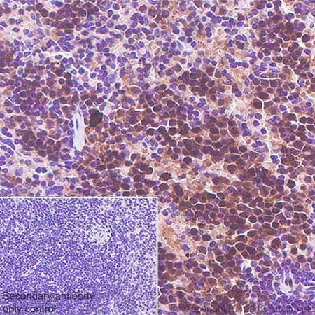 Immunohistochemistry (Formalin/PFA-fixed paraffin-embedded sections) - Anti-Cdk2 antibody [SP80] - BSA and Azide free (ab240937)