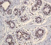 Immunohistochemistry (Formalin/PFA-fixed paraffin-embedded sections) - Anti-CHD3 antibody [EPNCIR110A] - BSA and Azide free (ab240942)