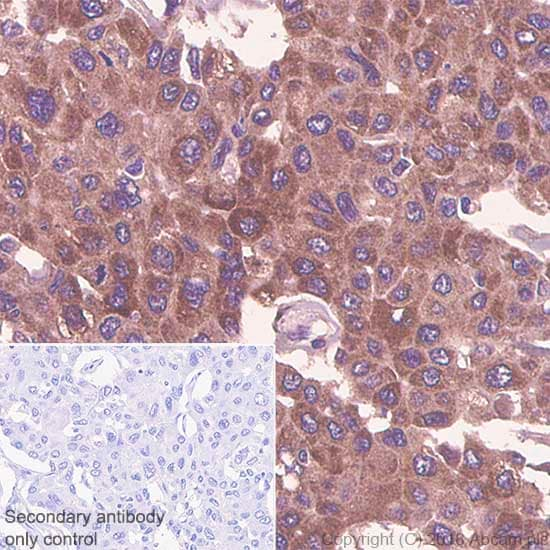 Immunohistochemistry (Formalin/PFA-fixed paraffin-embedded sections) - Anti-Thymidylate Synthase antibody [SP112] - BSA and Azide free (ab240947)