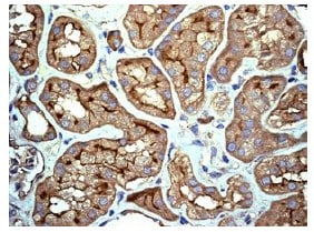 Immunohistochemistry (Formalin/PFA-fixed paraffin-embedded sections) - Anti-IL-11RA antibody [EPR5446] - BSA and Azide free (ab240950)