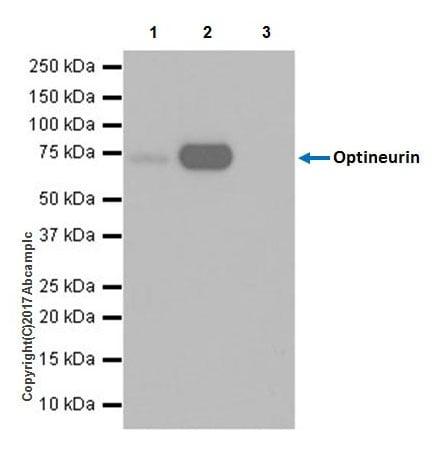 Immunoprecipitation - Anti-Optineurin antibody [EPR20654] - BSA and Azide free (ab240979)