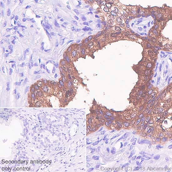 Immunohistochemistry (Formalin/PFA-fixed paraffin-embedded sections) - Anti-Prostate Specific Antigen antibody [SP317] - BSA and Azide free (ab240982)