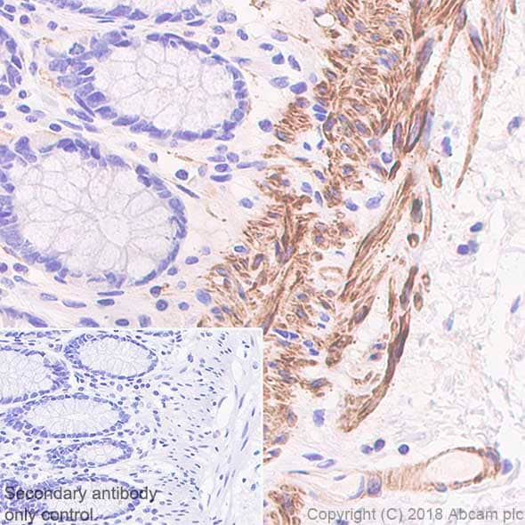 Immunohistochemistry (Formalin/PFA-fixed paraffin-embedded sections) - Anti-smooth muscle Myosin heavy chain 11 antibody [SP314] - BSA and Azide free (ab240983)