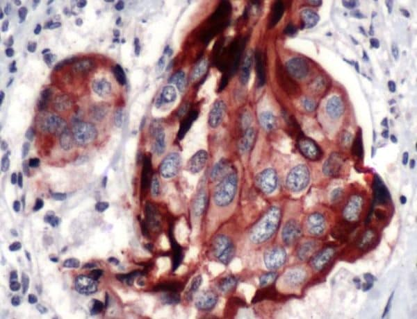 Immunohistochemistry (Formalin/PFA-fixed paraffin-embedded sections) - Anti-E Cadherin antibody [SP64] - BSA and Azide free (ab240984)