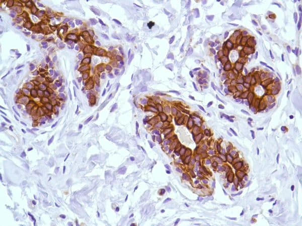 Immunohistochemistry (Formalin/PFA-fixed paraffin-embedded sections) - Anti-KRT6C antibody [SP87] - BSA and Azide free (ab240985)