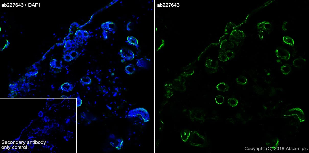 Immunohistochemistry (Frozen sections) - Anti-KRT6C antibody [SP87] - BSA and Azide free (ab240985)