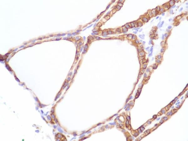 Immunohistochemistry (Formalin/PFA-fixed paraffin-embedded sections) - Anti-Cytokeratin 8 antibody [SP102] - BSA and Azide free (ab240986)