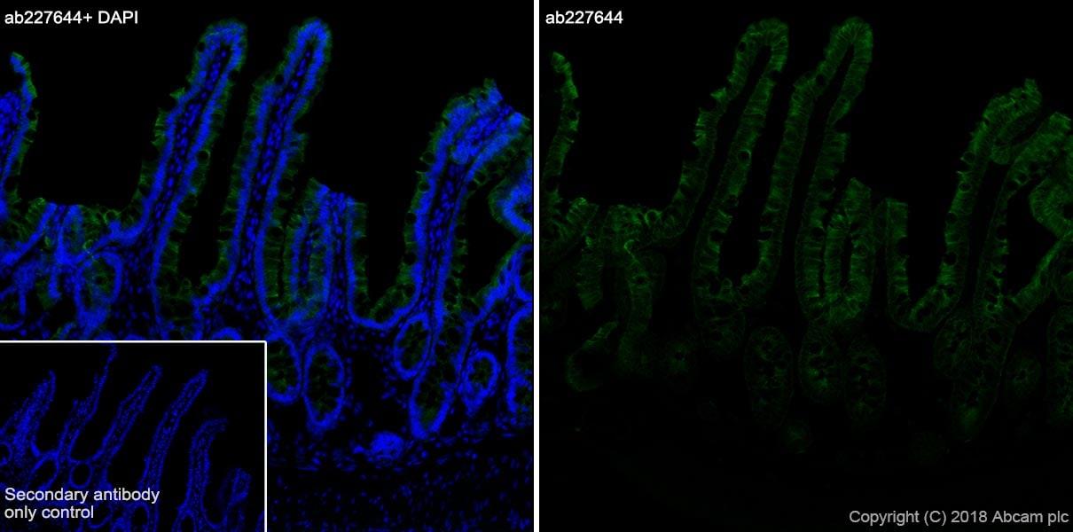 Immunohistochemistry (Frozen sections) - Anti-Cytokeratin 8 antibody [SP102] - BSA and Azide free (ab240986)