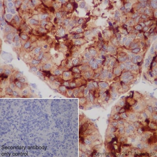 Immunohistochemistry (Formalin/PFA-fixed paraffin-embedded sections) - Anti-Glypican 3 antibody [EPR20569] - BSA and Azide free (ab240995)