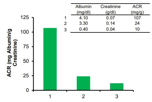 Estimation of ACR in human urine in diabetic (1) and non-diabetic donors (2, and 3).
