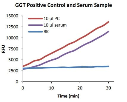 GGT Positive Control and Serum Sample.