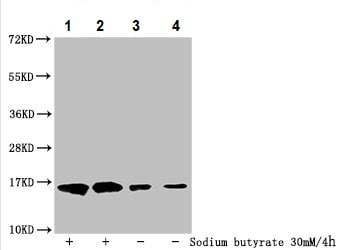 Western blot - Anti-Histone H3 (2-hydroxyisobutyryl K122) antibody (ab241052)