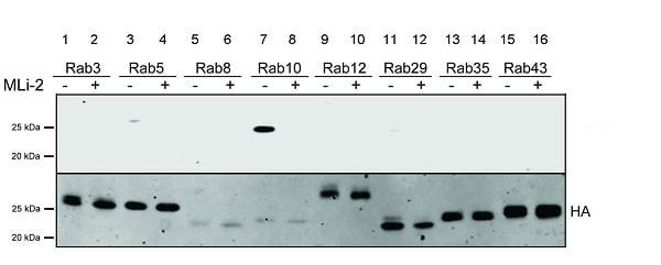 Western blot - Anti-RAB10 (phospho T73) antibody [MJF-R21-22-5] (ab241060)
