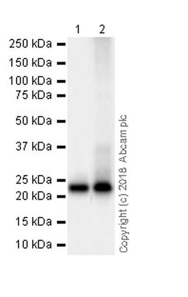 Western blot - Anti-RAB8A antibody [MJF-R22-79-3] (ab241061)