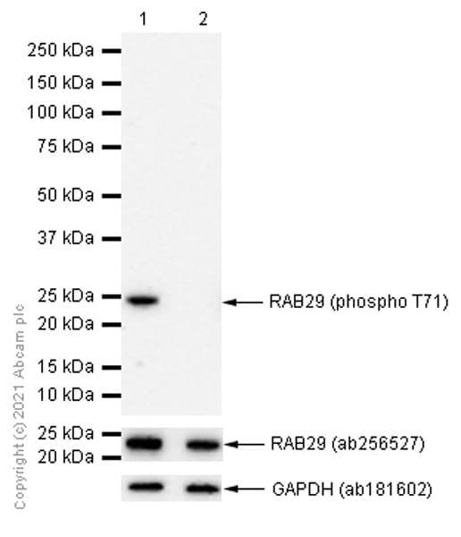 Western blot - Anti-RAB29 (phospho T71) antibody [MJF-R24-17-1] (ab241062)