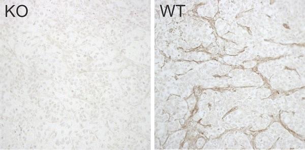 Immunohistochemistry (Formalin/PFA-fixed paraffin-embedded sections) - Anti-TEM8/ATR antibody [EPNCI-R173-37] (ab241067)
