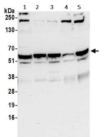Western blot - Anti-RAP55 antibody (ab241075)