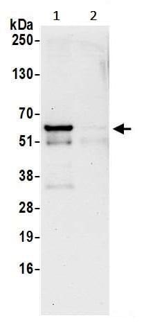 Immunoprecipitation - Anti-RAP55 antibody (ab241075)