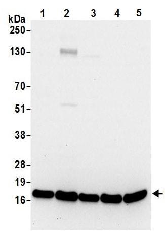 Western blot - Anti-RPL23 antibody (ab241088)