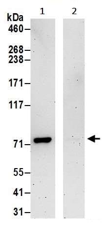 Immunoprecipitation - Anti-PFKL antibody (ab241093)