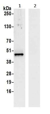 Immunoprecipitation - Anti-VRK1 antibody (ab241106)