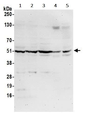 Western blot - Anti-CNDP2/CN2 antibody (ab241126)