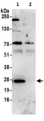 Immunoprecipitation - Anti-Rab1A antibody (ab241133)