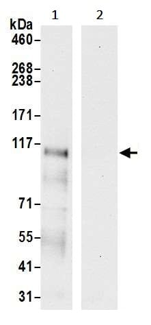 Immunoprecipitation - Anti-Lipin 1 antibody (ab241134)