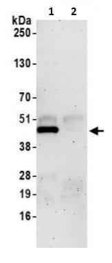 Immunoprecipitation - Anti-SNX15 antibody (ab241157)
