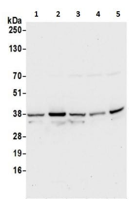 Western blot - Anti-Syntaxin 12/Syntaxin-13 antibody (ab241161)
