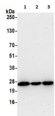 Western blot - Anti-Nucleoside-diphosphate kinase antibody (ab241162)
