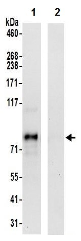 Immunoprecipitation - Anti-FBXO30 antibody (ab241190)