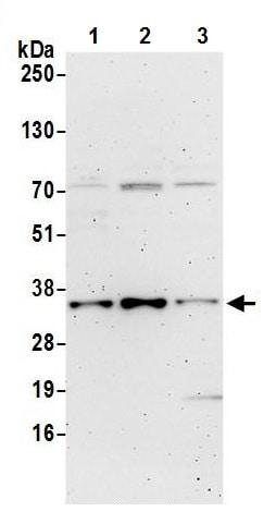 Western blot - Anti-RWDD1 antibody (ab241191)