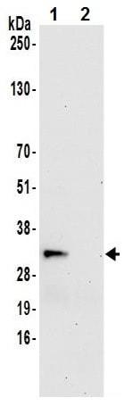 Immunoprecipitation - Anti-RWDD1 antibody (ab241191)