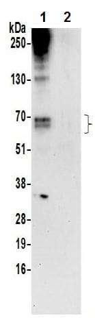 Immunoprecipitation - Anti-PXK antibody (ab241192)