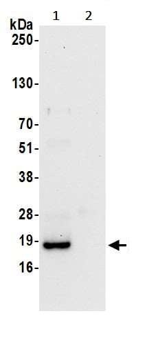 Immunoprecipitation - Anti-POP5 antibody (ab241199)