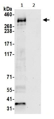 Immunoprecipitation - Anti-Myosin IXA antibody (ab241200)