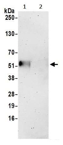Immunoprecipitation - Anti-FAM126A antibody (ab241202)