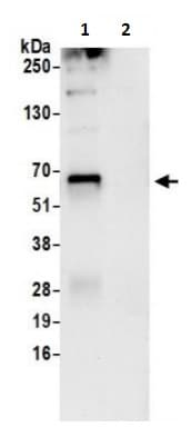 Immunoprecipitation - Anti-MSTO1 antibody (ab241208)
