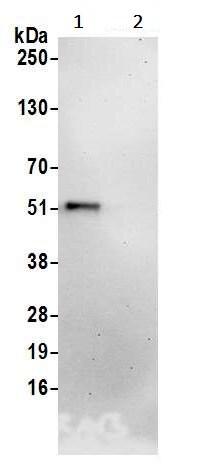 Immunoprecipitation - Anti-SCYL1BP1 antibody (ab241214)