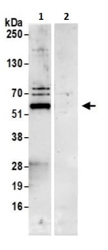 Immunoprecipitation - Anti-NARFL antibody (ab241215)