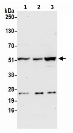 Western blot - Anti-CNDP2/CN2 antibody (ab241216)