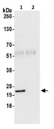 Immunoprecipitation - Anti-ATP5H antibody (ab241223)