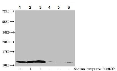 Western blot - Anti-Histone H4 (2-hydroxyisobutyryl K8) antibody (ab241250)